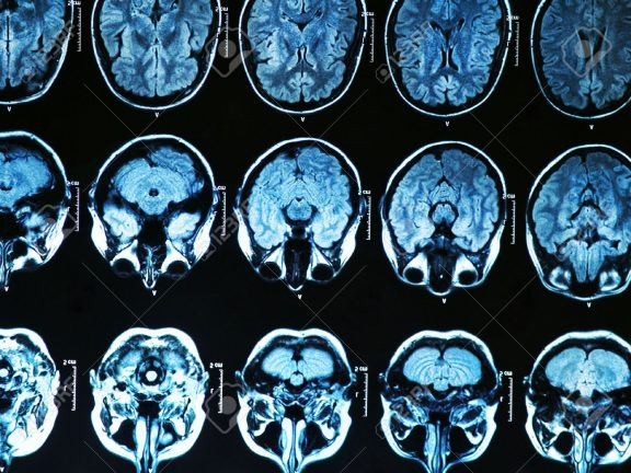 brain-scan-576x432
